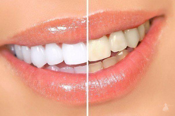 5 очень простых рецептов сделать свои зубки белее