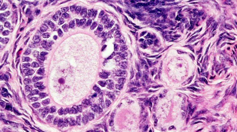 «Искусственные яичники» помогут забеременеть после химиотерапии