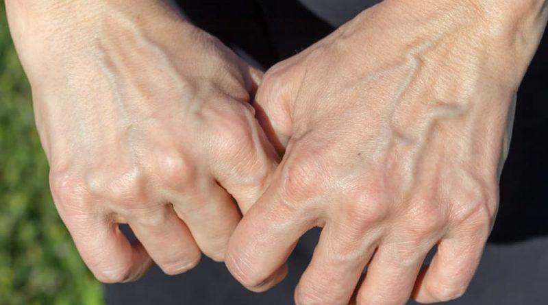 Чтобы руки не выдавали ваш возраст